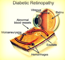 Diabetic Retinopathy Illustration